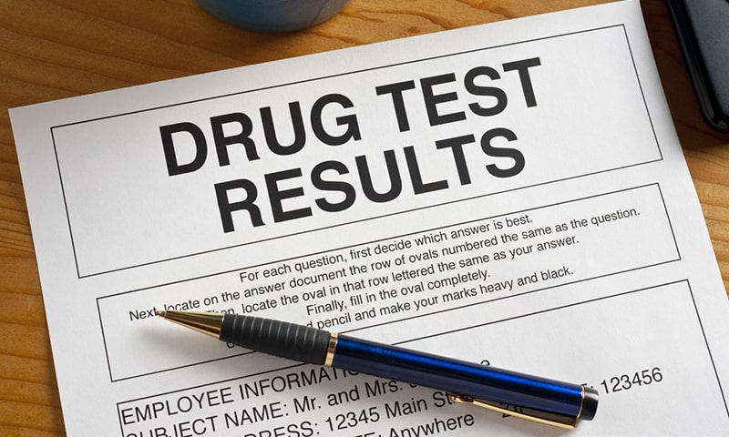 Does CBD Show Up In Drug Tests?